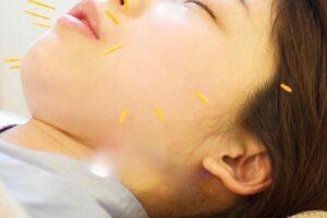 出張鍼灸整体院CASHÉLでの目黒区の産後ママへの美容鍼